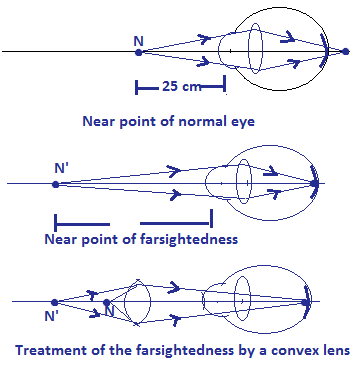 Treatment of farsightedness by a convexlens