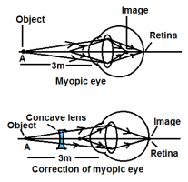 Correction of myopic eye using concave lens