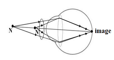 correction of hypermetropic eye
